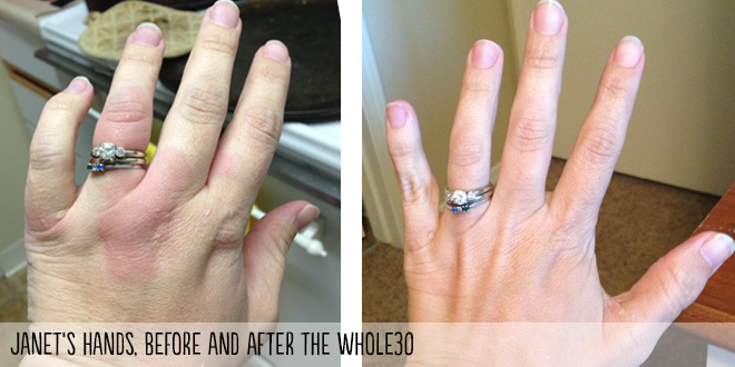 hands-before-after